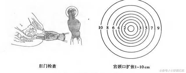 孕妇生产前除了内检,为什么还有做肛检,宫口全开十指是咋样的?