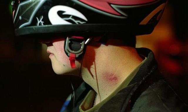 可惜!17岁男孩被女朋友在脖子留个吻印,不幸丧命!
