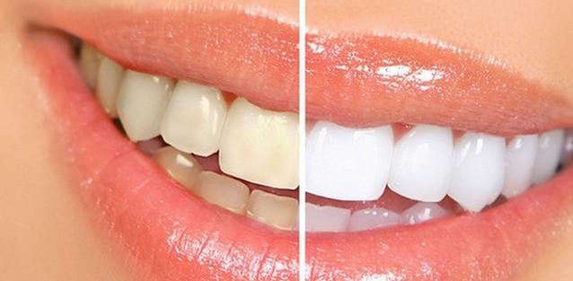 无需洗牙,教你5分钟消除牙垢!太实用了!!