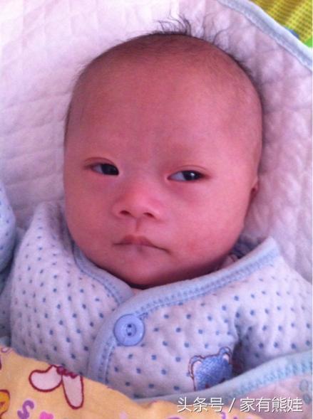 为什么?小宝一个月大被查出是唐氏儿,我天天以泪洗面!