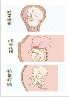 怀孕9月胎儿猝死腹中!竟因妈妈缺乏常识