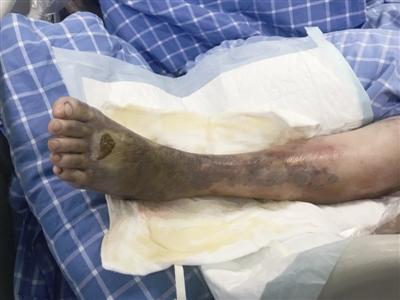河邊洗菜感染嗜水氣單胞菌 鄞州一老人左腿差點被