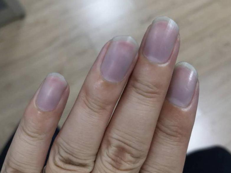 牛仔裤褪色正常?手指甲都变蓝了。我第一次买不懂