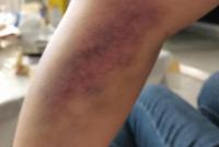 在医院抽个血,整个手淤青