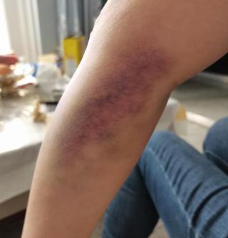 在医院抽个血,整个手臂都淤青了…